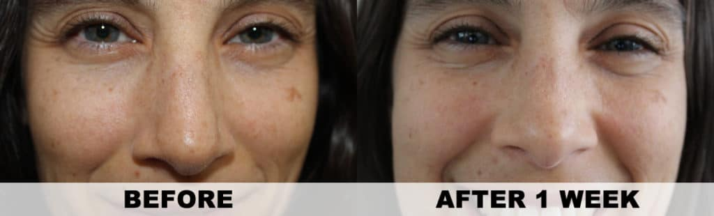 Annmarie Gianni Review - Before & After